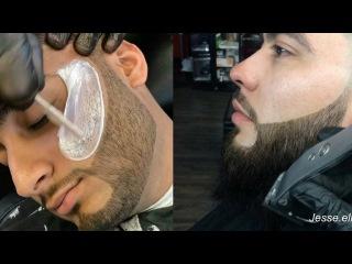 Best Barber Around The Worlds ✂️ Beard Styles ✔️ Hair-Cutting 💯 Black Head Removing