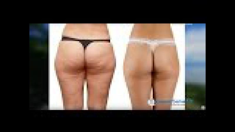 Straffe Haut statt Cellulite 25 08 16 mit Prof Dr Ionescu