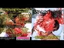 BATAKAZZO INTRATHORACIC REPULSION cephalic putridity split 2016