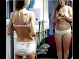 Фильм Нарушения пищевого поведения: анорексия, булимия, компульсивное переедание