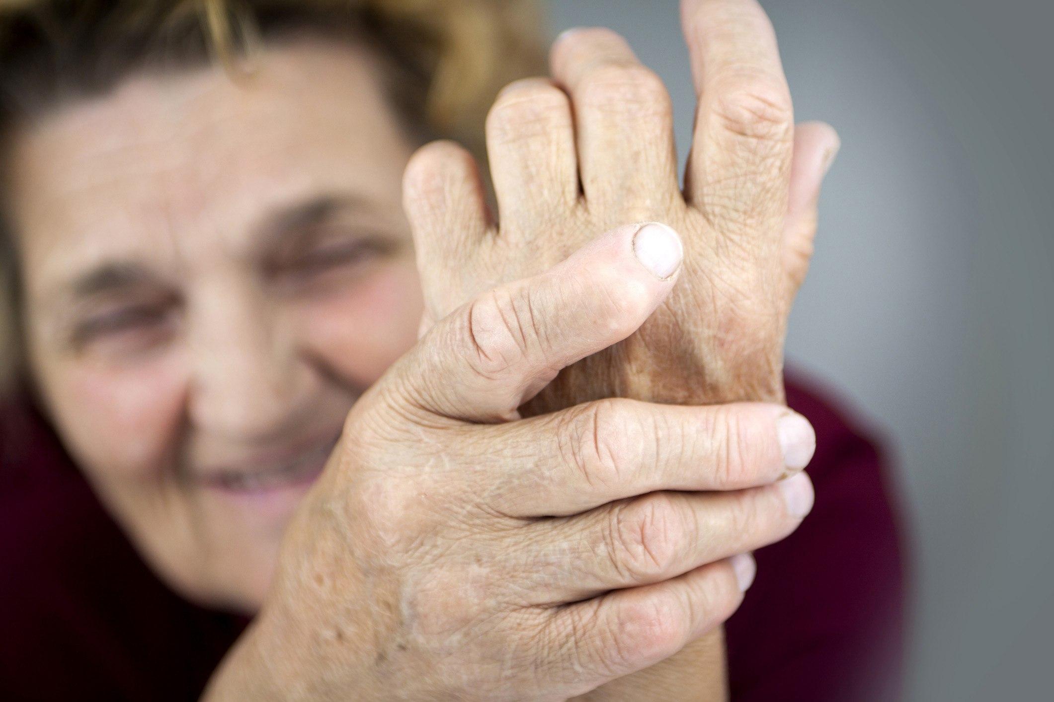 Склеродермия и ревматоидный артрит