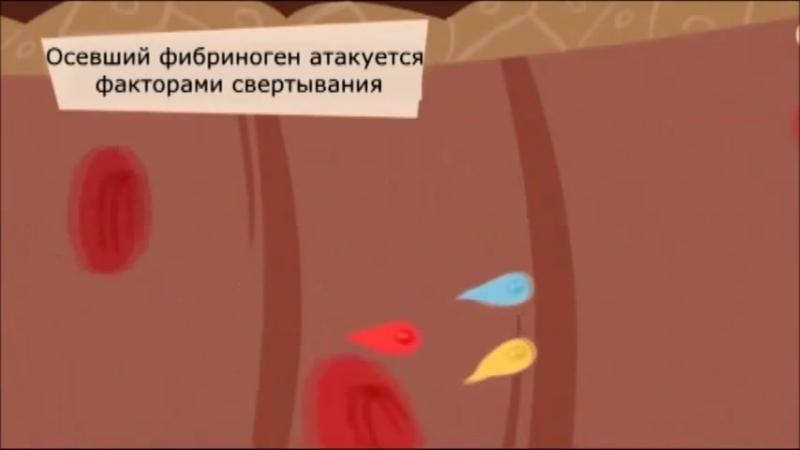 остановка кровотечения » Freewka.com - Смотреть онлайн в хорощем качестве