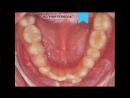 Видео 72. Устраняем скученность, формируем правильную зубную дугу