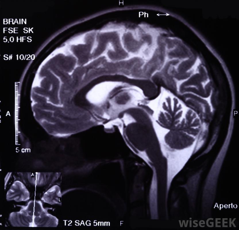 Функциональные МРТ позволяют отслеживать кровоток