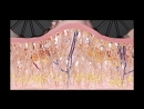 icoone® LASER - The ultimate technology in skin treatment for body and face.mp4