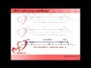 Urok 6 Videokurs EKG pod silu kazhdomu