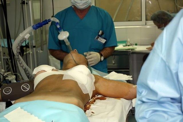 Девушка с тремя грудями решилась на операцию