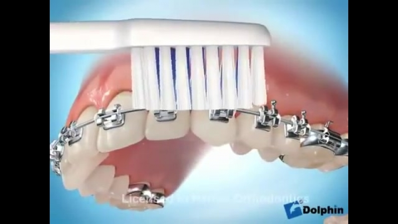 Как правильно чистить зубы с брекет-системой