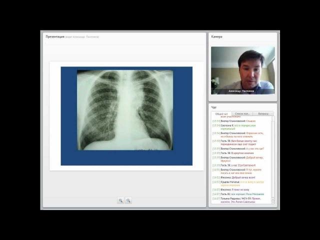 Туберкулез у больных ВИЧ. Вопросы диагностики