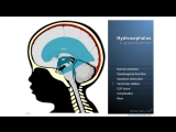 Hydrocephalus - Definition, treatment and complications
