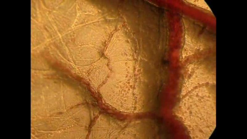 Изменения микроциркуляции при воспалении