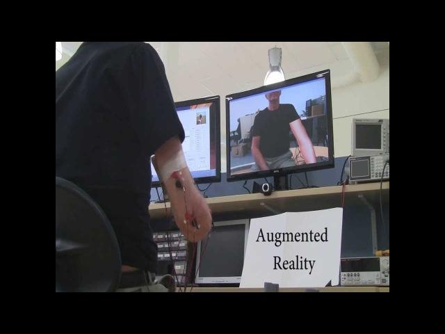 Phantom limb pain (PLP) treatment based in VR, AR, gaming, and MPR