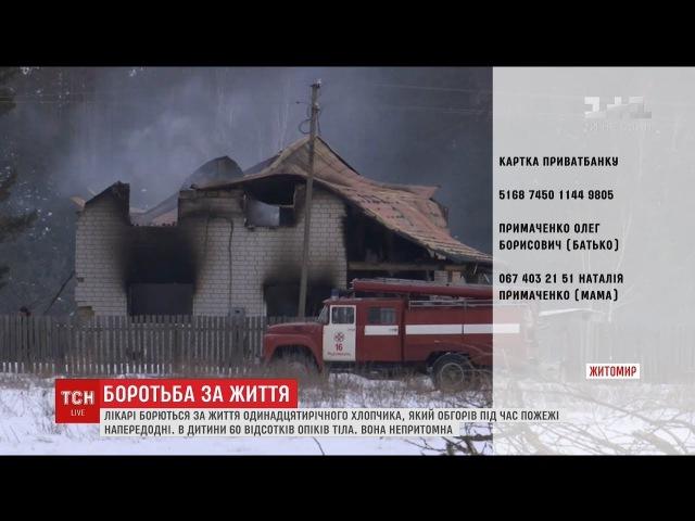 Хлопчик, який обгорів під час пожежі на Житомирщині, потребує допомоги
