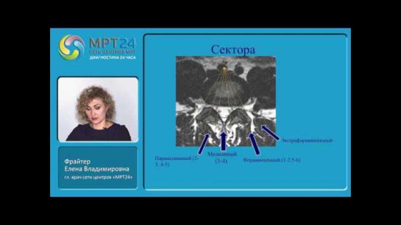 «МРТ-диагностика дегенеративных изменений, травм и других патологий позвоночн ...