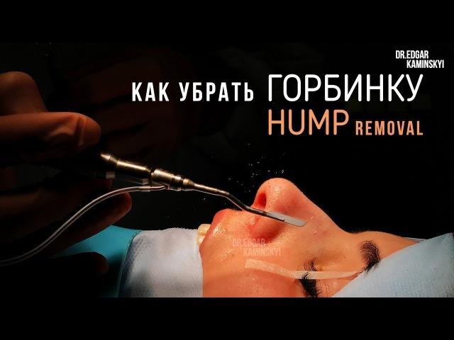 КАК УБРАТЬ ГОРБИНКУ. Закрытая ринопластика | HUMP REMOVAL ★ EDGAR KAMINSKYI