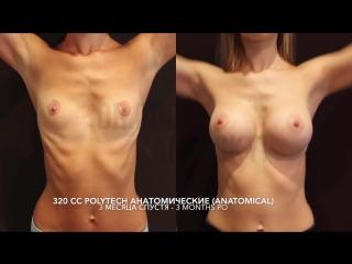 Результаты увеличения груди - ЧАСТЬ 1 ★ Breast augmentation results - PART 1 _ Dr. Edgar Kaminskyi