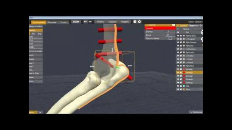 Артродез локтевого сустава без остеотомии локтевого бугра