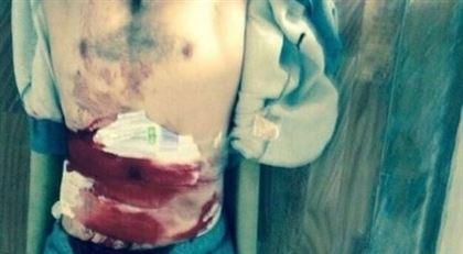 Заключенный из Дагестана вскрыл себе брюхо (Видео)