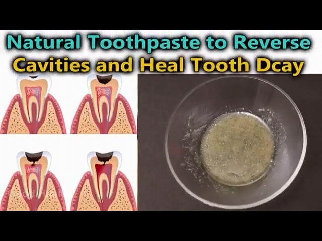 How to reverse cavities and heal tooth decay in only 1 step