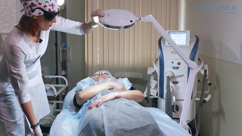 Фототерапия M22 на руки: консультация и процедура