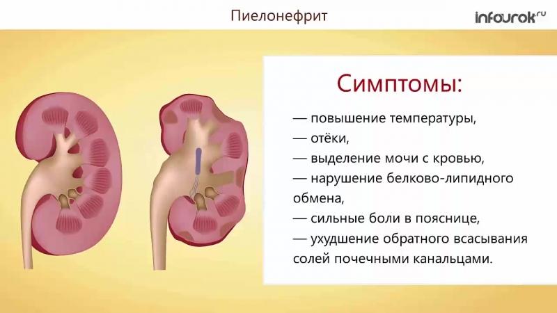 38 Заболевания органов мочевыделения
