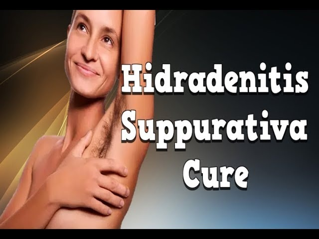 Hidradenitis Suppurativa Cure, How To Treat Hidradenitis Suppurativa, Axillary Hidradenitis Suppurat