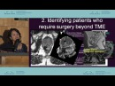 Рак прямой кишки стадирование и оценка постоперационного лечения