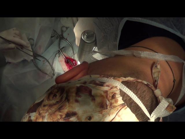 Хирургическое лечение перелома голени (42А2) у собаки при помощи накостного остеосинтез DCP-пластиной