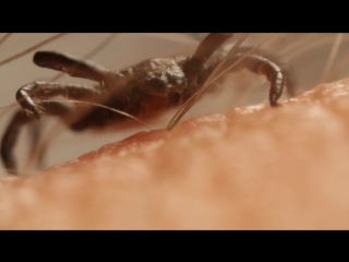 How Ticks Dig In With a Mouth Full of Hooks ¦ Deep Look