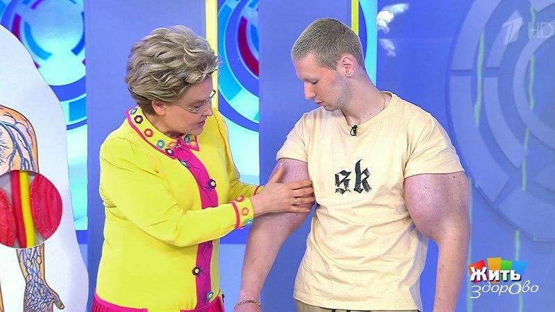Жить здорово! Руки-базуки добрались до врачей(21.05.2018)