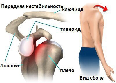 Нестабильность сустава нога отекла в коленном суставе
