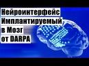 Нейроинтерфейс Имплантируемый в Мозг от DARPA