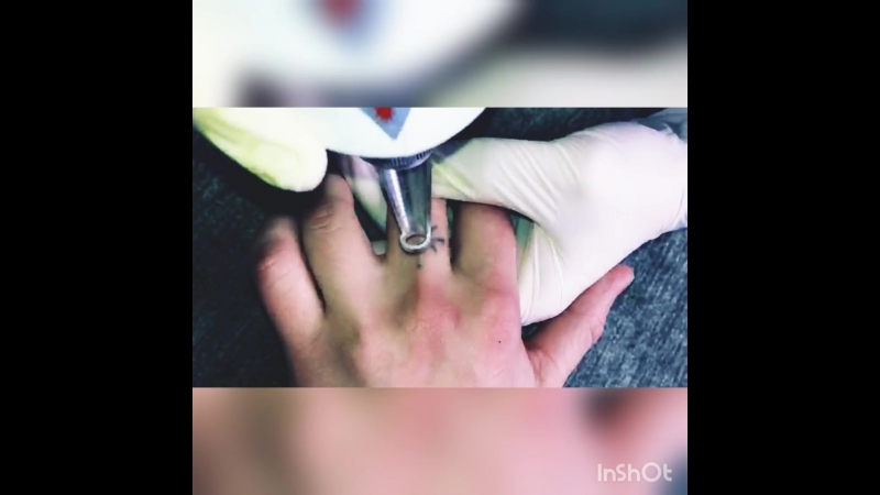 Удаление татуировки КАЗАНЬ
