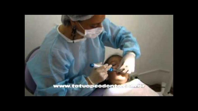 Anestesia sem agulhas