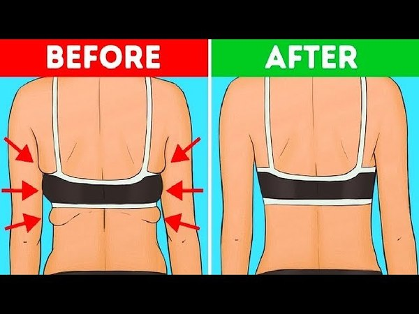 7 Exercises to Get Rid of Back and Armpit Fat in 20 Minutes
