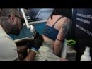 Удаление татуировки на лазере Picosure