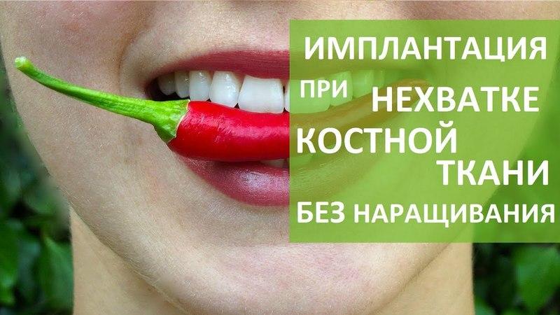 Костная ткань зуба 😷 Методы имплантации при нехватке костной ткани зуба ROOTT 12