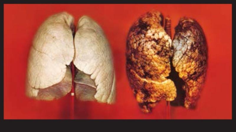 Как Бросить Курить Личный Опыт. У ТЕБЯ ПОЛУЧИТСЯ