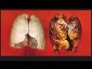 Как Бросить Курить Личный Опыт У ТЕБЯ ПОЛУЧИТСЯ