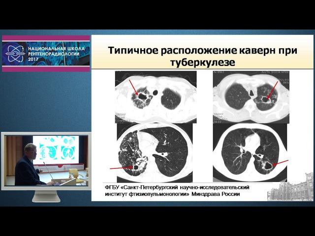 П.В. Гаврилов - Полостные образования в лекгих. Основы дифференциальной диагностики