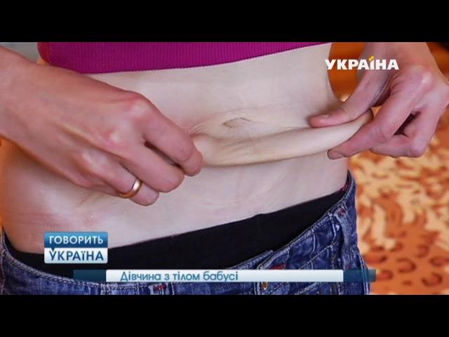 Девушка с телом бабушки (полный выпуск) | Говорить Україна