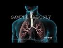 Pneumonia - Nucleus Health