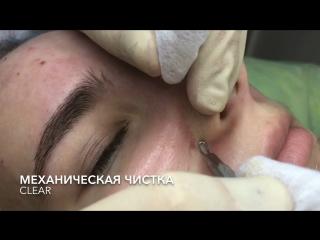 Чистка Лица Нижневартовск