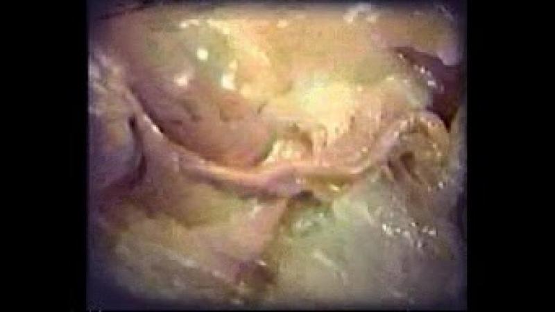 Анатомия червеобразного отростка