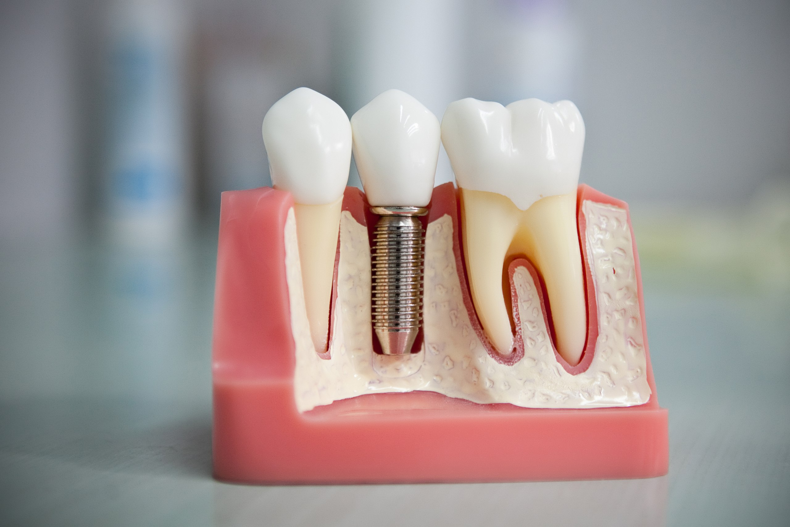 Что такое зубной протез?