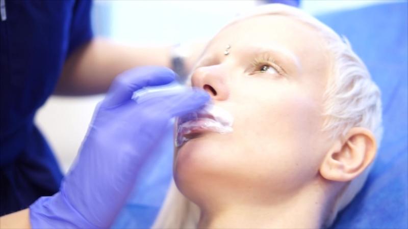 Контурная пластика лица (Увеличение губ филерами на основе гиалуроновой кислоты)