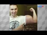 Андрей Малахов. Прямой эфир. Руки-базуки умереть ради славы в интернете