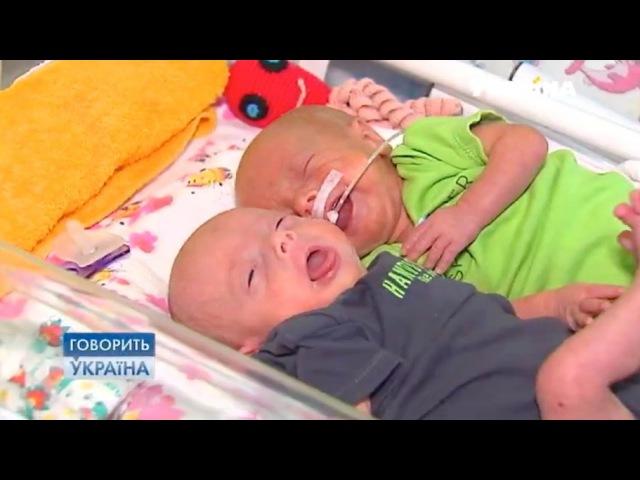 Цена жизни близнецов (полный выпуск) | Говорить Україна