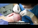 Изьятие фолликул в донорской зоне для дальнейшей трансплантации в зону облысения