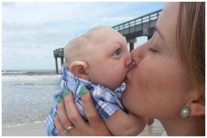 Фантастический малыш рожденный с половиной головы выжил и утер нос врачам (4 Фото)